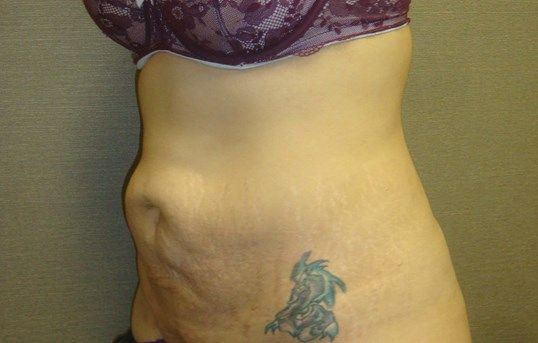 Left Oblique Before