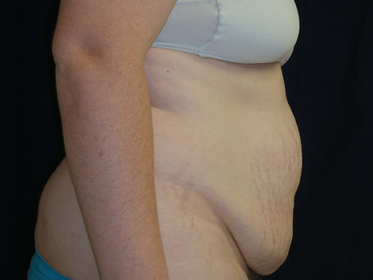 Tummy Tuck Results, Lateral  Before