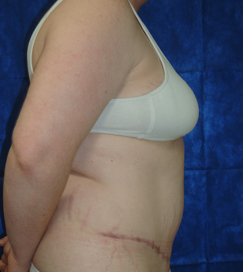 Tummy Tuck Results, Lateral  After
