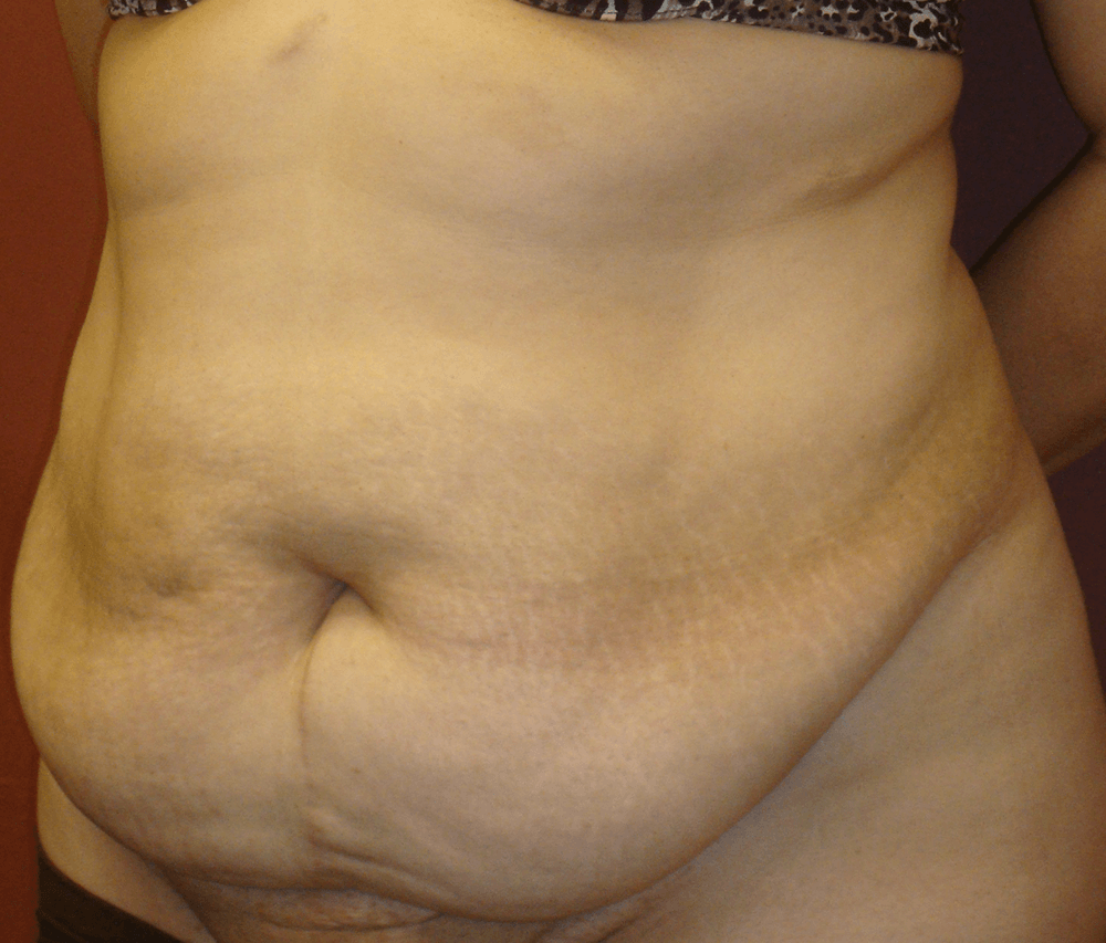 Oblique Before